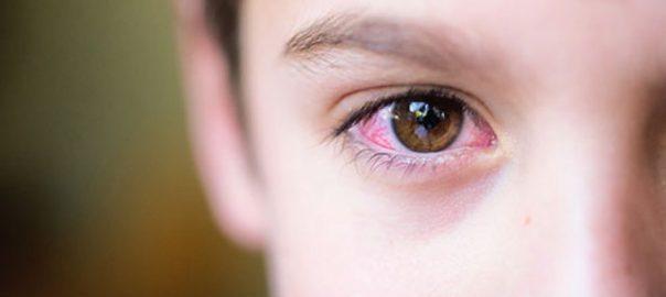 hình đau mắt